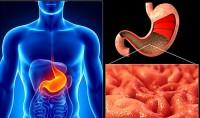 Гастрит — симптомы и лечение