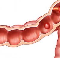 Гиперпластический и гиперплазиогенный полип желудка