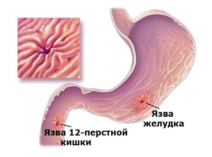 Симптоматика патологии 12-перстной кишки