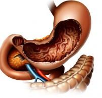 Катаральный гастрит — симптомы и лечение