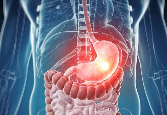 Симптомы и лечение рефлюкс гастрита