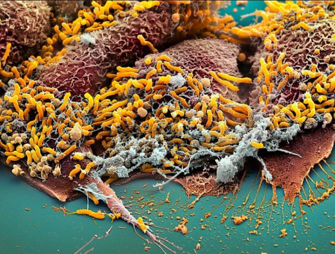 хеликобактери в желудке