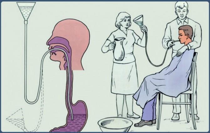 промывание желудка зондом