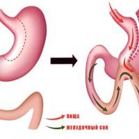 Шунтирование желудка – лечение или приобретение проблем?