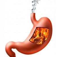 Рефлюкс желудка и его лечение
