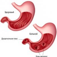 Перфорация язвы желудка – что это и как лечить