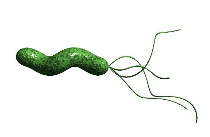 Причины развития патологии язвы двенадцатиперстной кишки