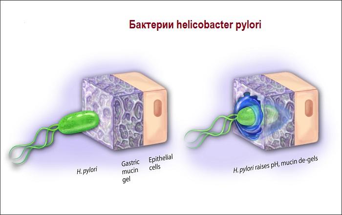 Бактерии helicobacter pylori