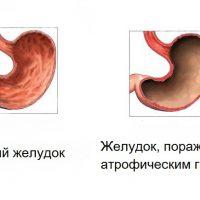 Атрофический гастрит: симптомы и лечение, первые признаки