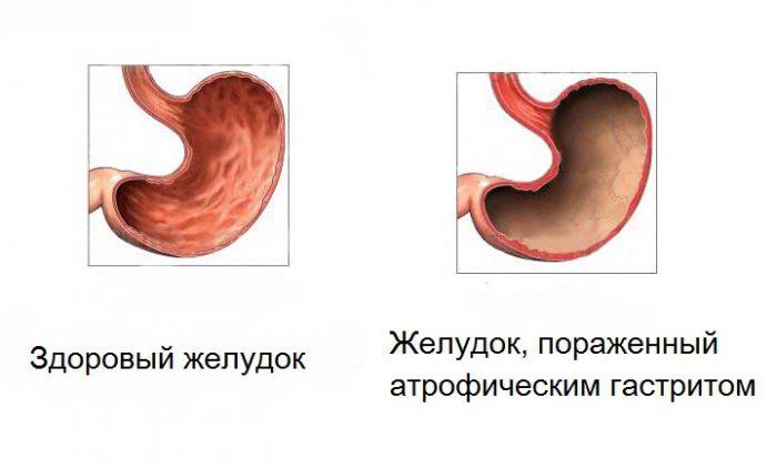 Что такое атрофический гастрит симптомы и лечение