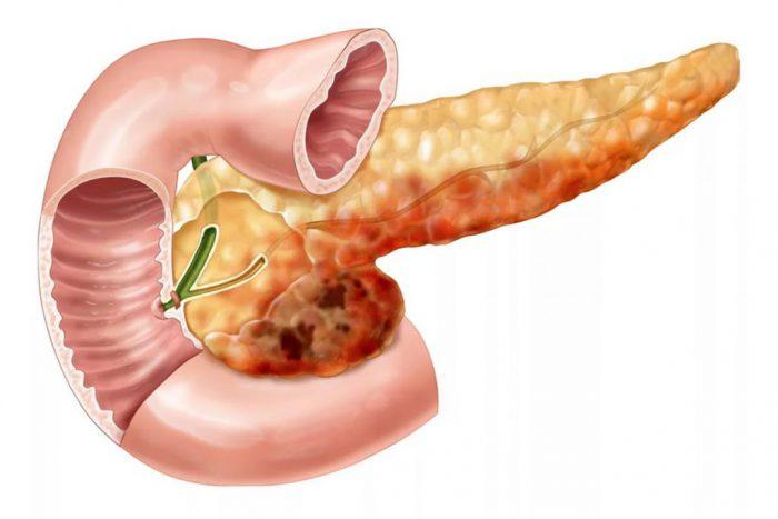Почему болит поджелудочная железа, симптомы лечение