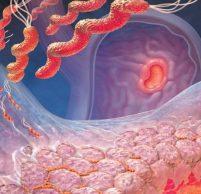Хронический очаговый атрофический гастрит — лечение
