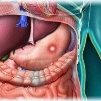 Как проявляется язва желудка: симптомы, причины, лечение