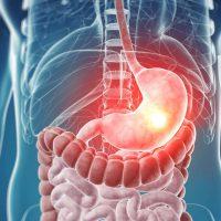 Нулевая кислотность желудка при гастрите: симптомы и лечение