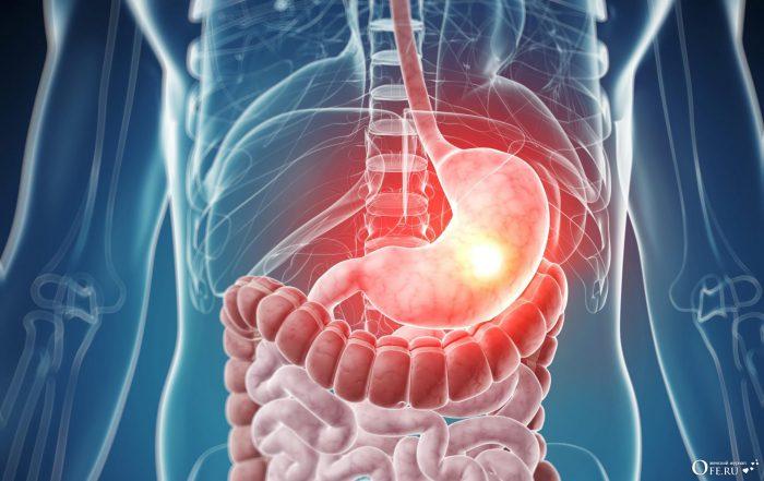 Нулевая кислотность желудка