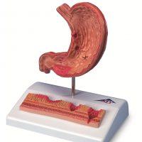 Открытая язва желудка: причины, симптомы и лечение