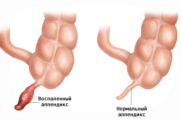 Воспаленный апендикс