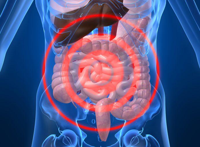 Симптомы и признаки дисбактериоза