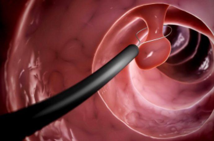 признаки полипов в кишечнике