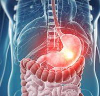 Фолликулярная гиперплазия желудка — какую опасность она в себе таит