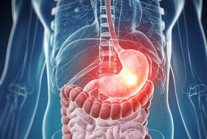 фолликулярная гиперплазия желудка