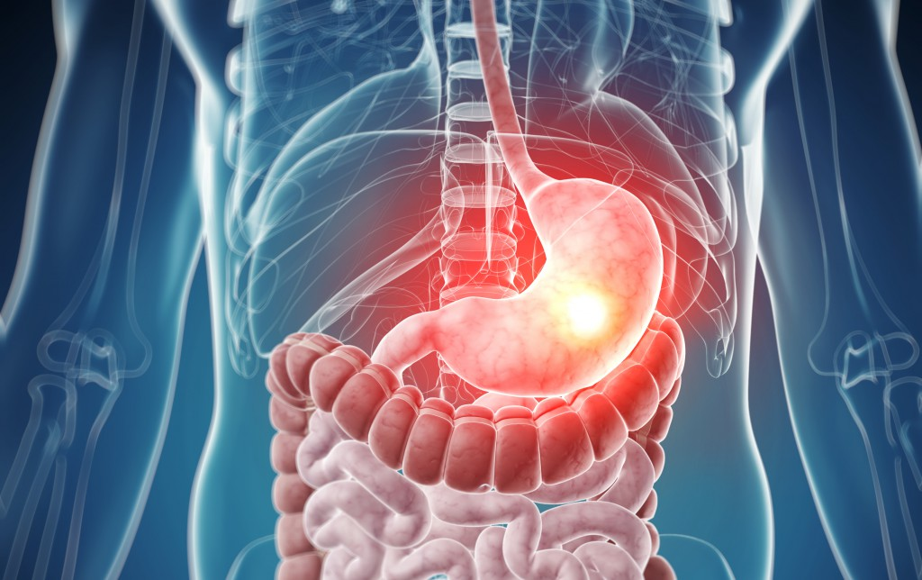 как быстро понизить кислотность в желудке