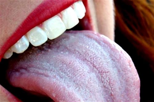 язык при гастрите как выглядит