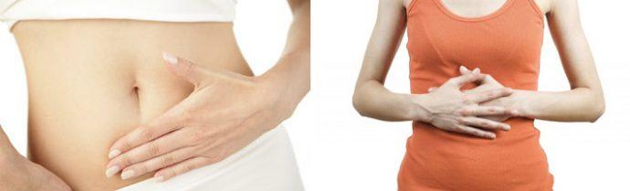 как вылечить разрыв желудка