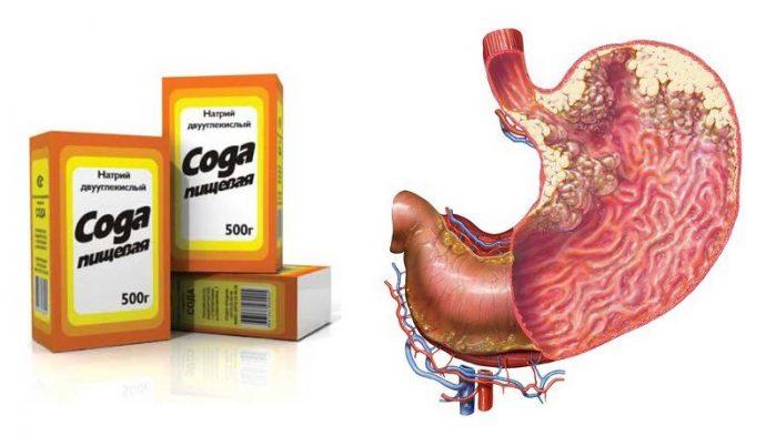 Осложнения язвенной болезни желудка.