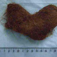Волосы в желудке: проявления и лечение трихобезоара