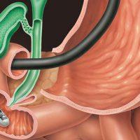 Бульбит желудка: причины, симптомы, лечение