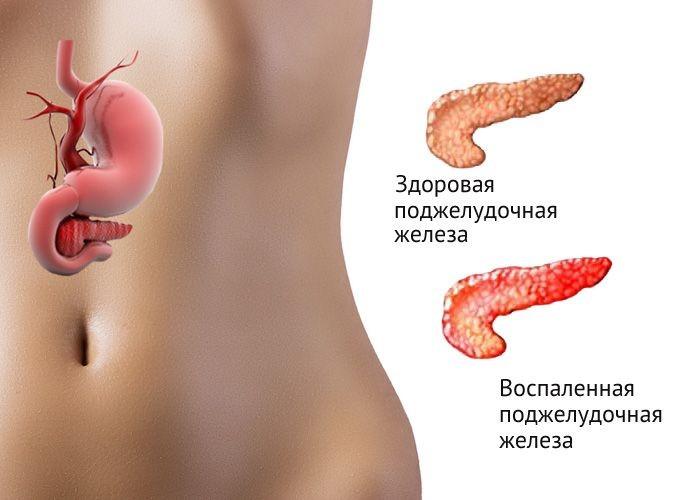 Болит желудок вверху причины