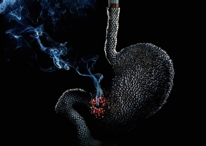 Гастрит и сигареты
