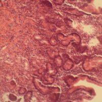 Патологии слизистой оболочки желудка и методы их лечения