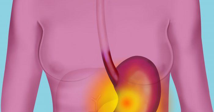 Патологии слизистой желудка