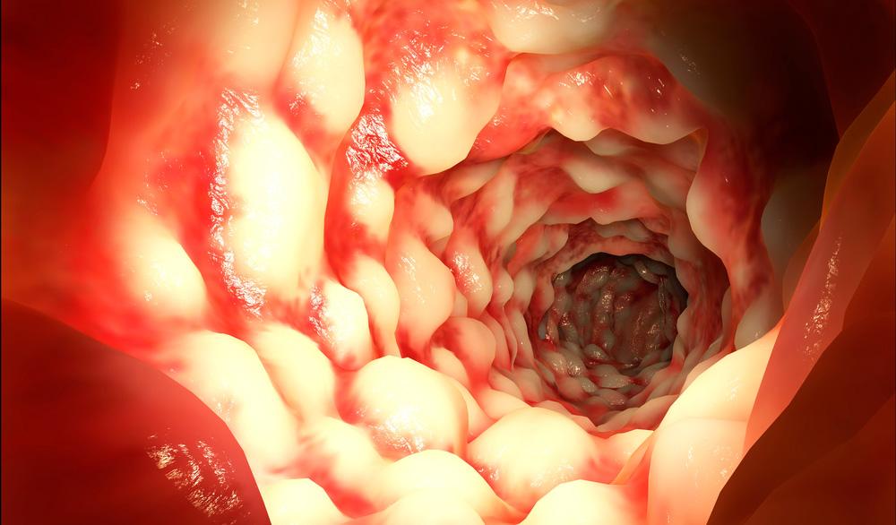 Дисбактериоз желудка