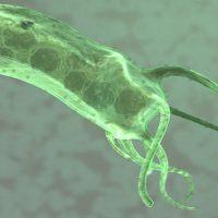 Helicobacter pylori: симптомы (на лице, со стороны ЖКТ), диагностика и лечение
