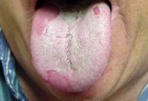 как выглядит язык при гастрите