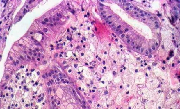 ксантома под микроскопом