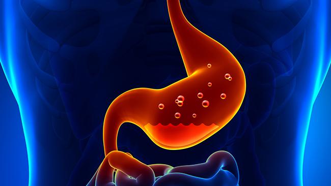 Причины ожога желудка