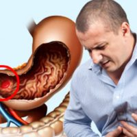 Внутреннее кровотечение желудка: симптомы, диагностика, лечение