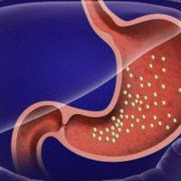 Как правильно лечить полипы в желудке народными средствами