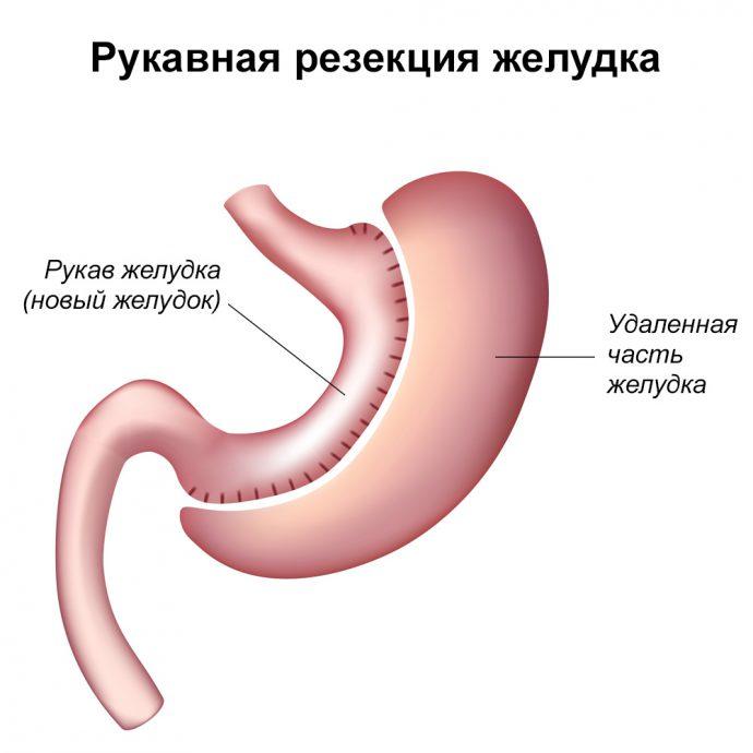 что такое Рукавная резекция желудка