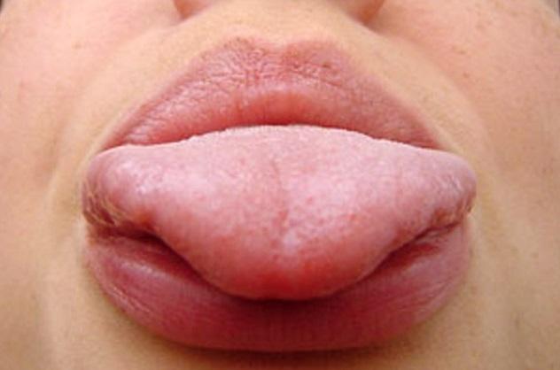 язык при гастрите