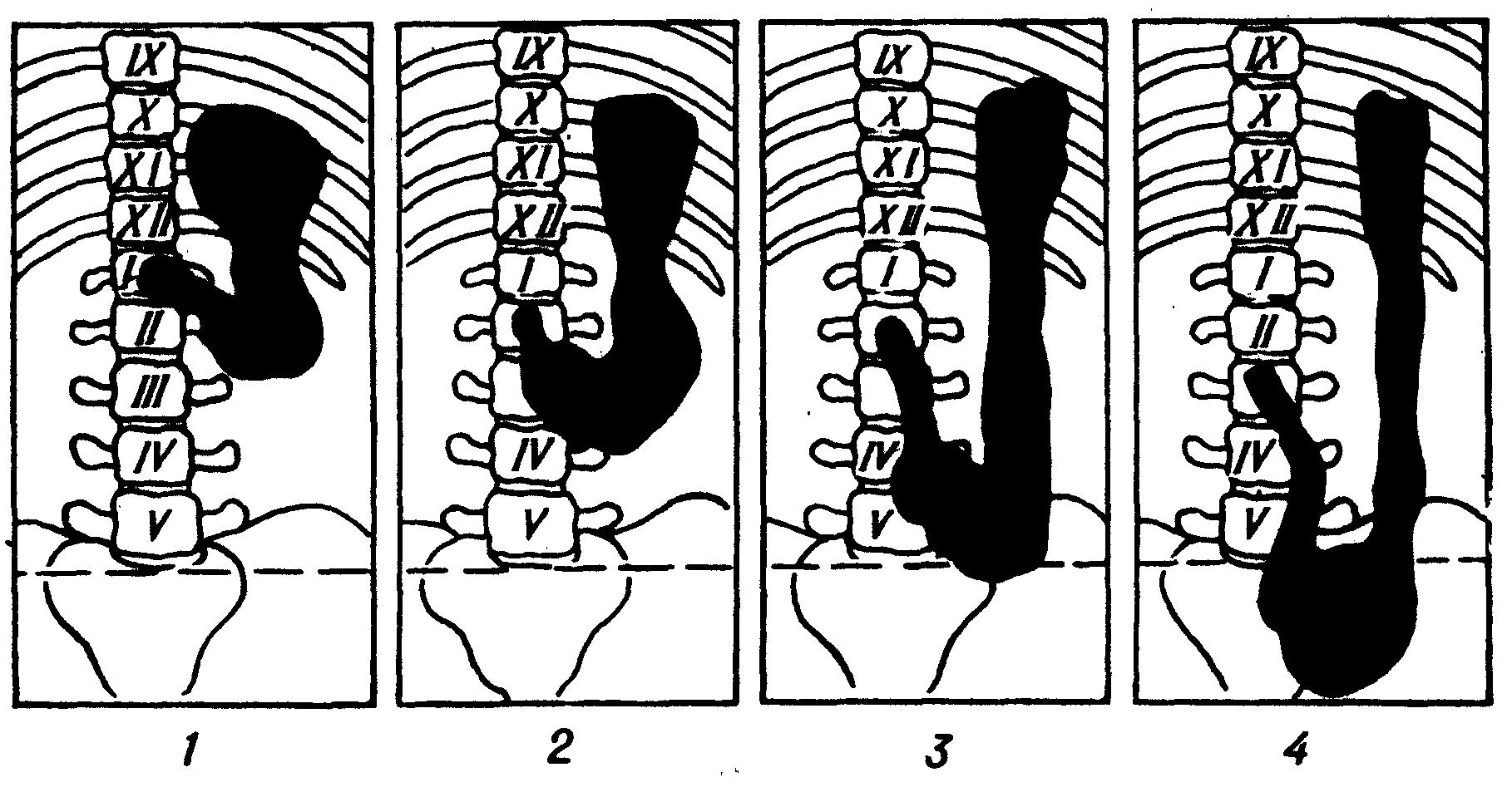 стадии опущения