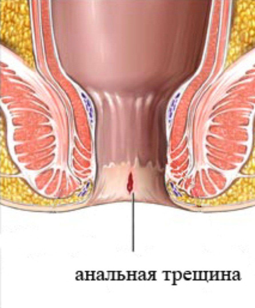 Лечение рубцов анальной трещины