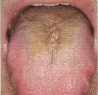 Желтый налет на языке: причины, диагностика и лечение
