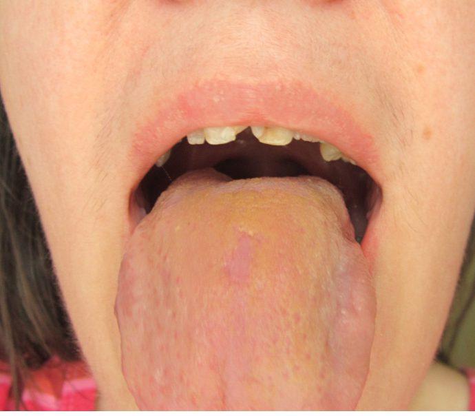 Желтый язык