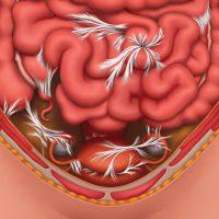 Кишечные спайки – причины возникновения и лечение