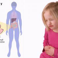 Симптомы и признаки аппендицита у детей